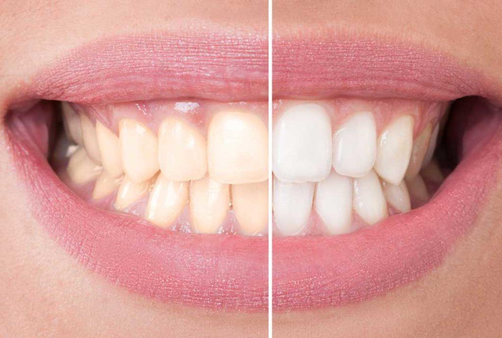 wybielanie zębow po zdjęciu aparatu ortodontycznego