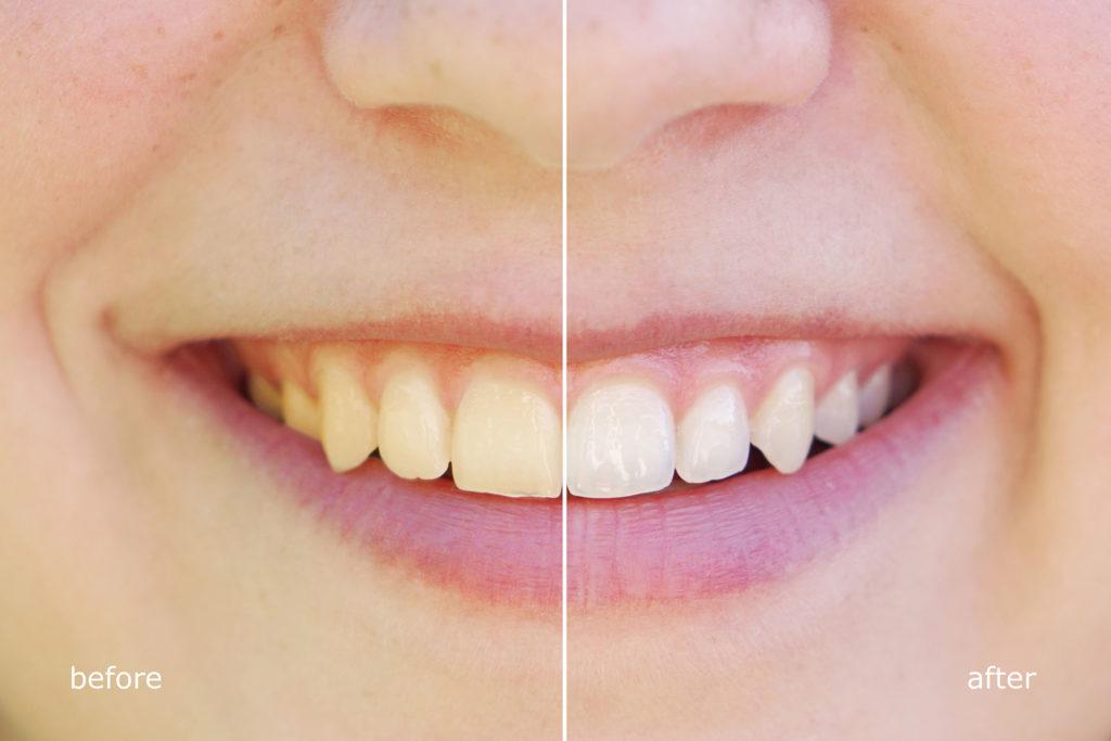 czy wybielanie zębów jest zdrowe czy jest szkodliwe