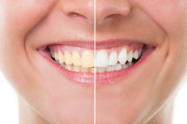 dobry najlepszy preparat do wybielania zębów