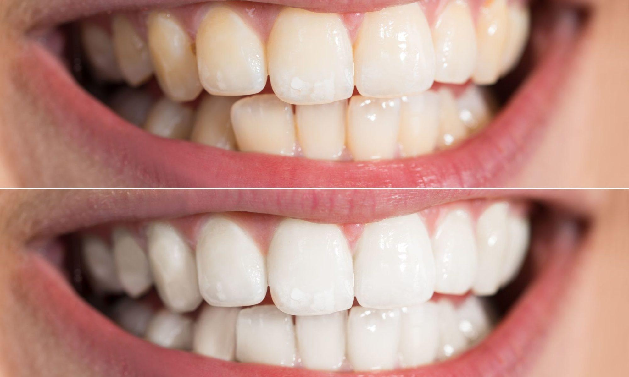 jak w domowy sposób wybielić zęby