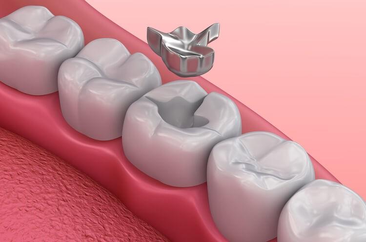 jak wybielić plombę zębową wybielanie plomby