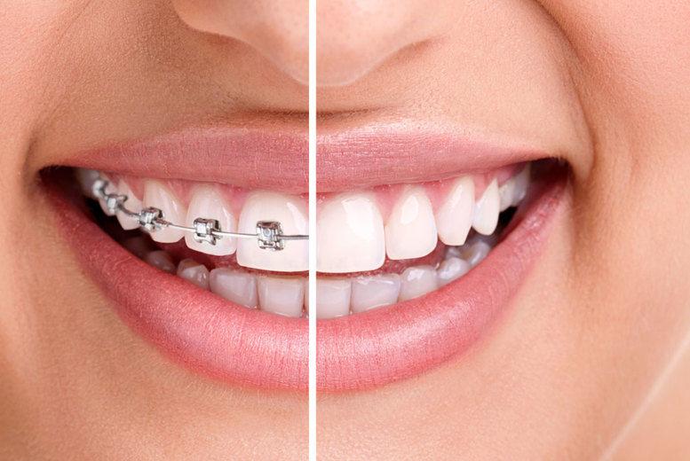 jak wybielić zęby z aparatem