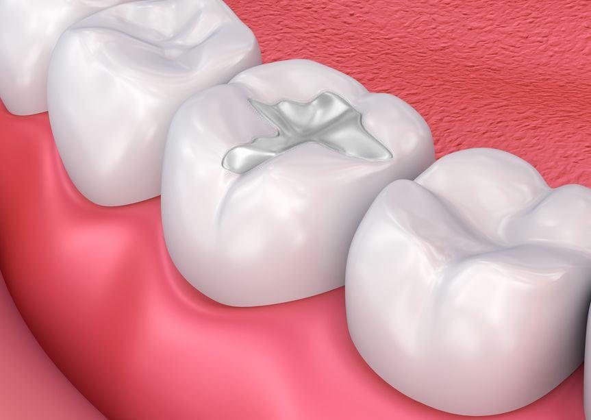 wybielanie zębów z plombami